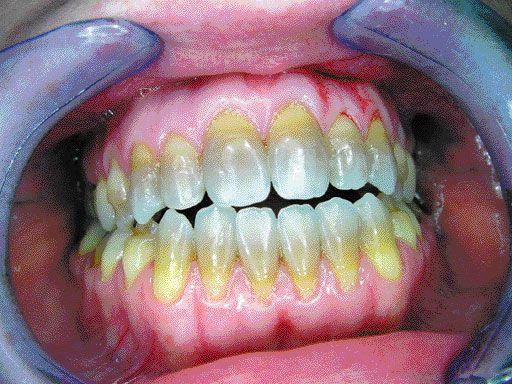 dohányzás és fogak)